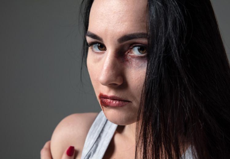 Causas y clases de la violencia de género